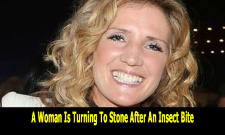 A Woman Is Turning To Stone After An Insect Bite